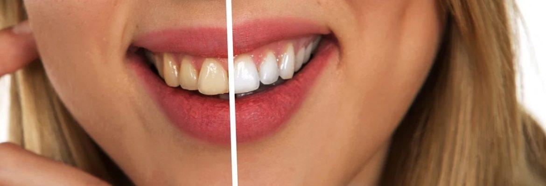 Quando sbiancare i denti